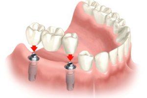 Protezai ant implantų