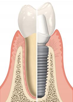 implantas